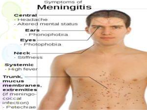 meningitis-ppt-16-638