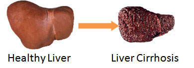 Cirrhosis And Decompensation Are Common Among People With Chronic Hepatitis C