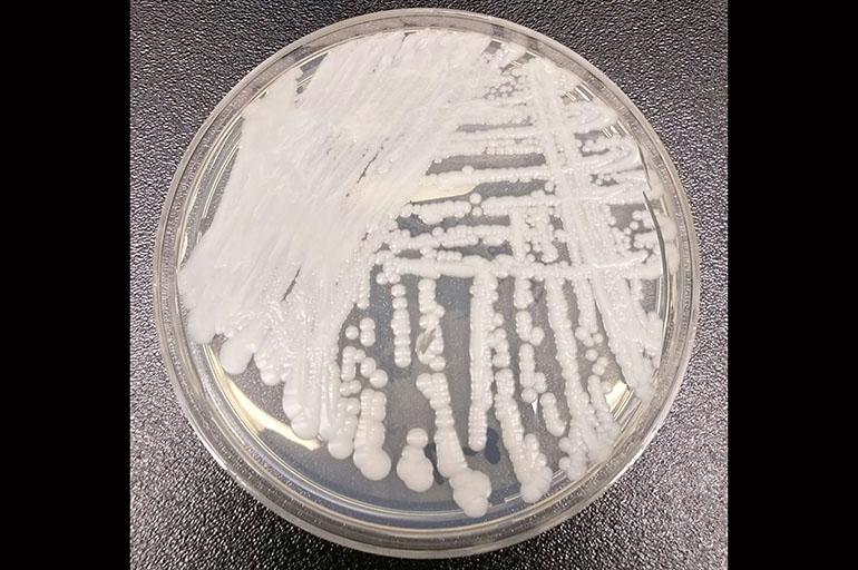 Deadly Superbug Linked To Four Deaths In The U.S.